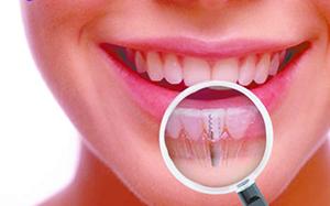 осмотр у стомотолога